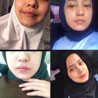 Serum Bougas Beauty by Erni Bougas (Malaysia) #maufenty
