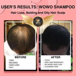 WOWO Shampoo Set