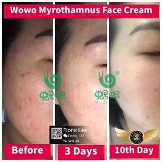 1 face cream for the sensitive, oily, acne, dull skin