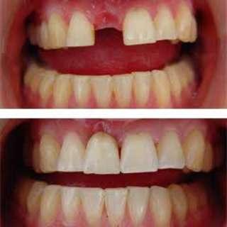 Free fixed denture (fixed pustiso)