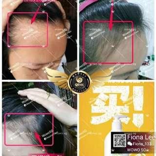 Oily scalp, hairloss, balding problem