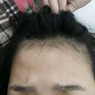 Hair Tonic Dan Serum Penumbuh Rambut Anti Rontok Dr Gunadi Dan Vitaline Intensive