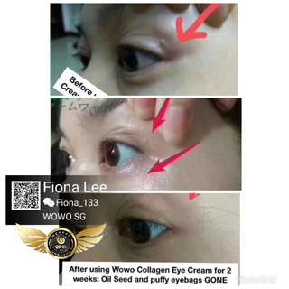 Reduces Saggy eye bags, fine wrinkle lines, Peptide Collagen Eye Cream with massager
