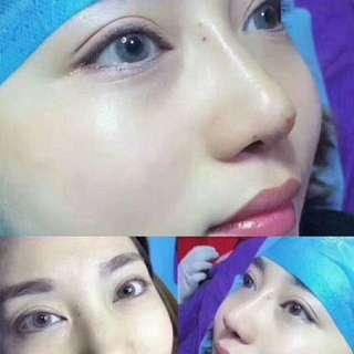 線雕鼻 鼻增高 隆鼻 恢復快傷口少
