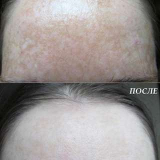 [100% Effective] Authentic Teana Collagen Serum C1 (Best Selling In RUSSIA) (scar, pigmentation, wrinkles, aging skin)