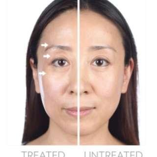 Galvanic facial gels