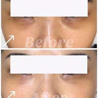 PROMO Meridian Eye Treatment