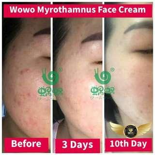 Myrothamnus flagellum Face Cream