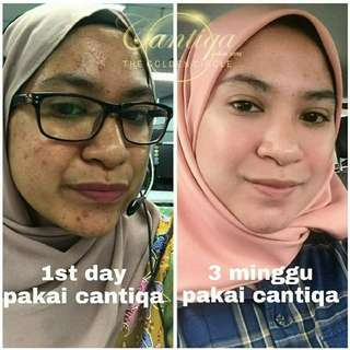 Cantiqa Miracle Skincare