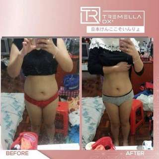Tremella-DX Enzyme night perfect body figure drink