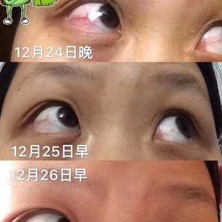 🔺   【红血丝反馈】     可以看到连贴3天明显感觉到红血丝在淡化     可以给你保证,你买回去试试,你戴美瞳时间过长必须备一贴。