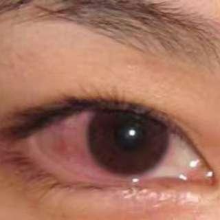 💋~黄金视力眼贴 推荐用法: 🍀眼疲劳:一天一次,觉得不舒服随时用 🍀假性近视:一天3次。坚持3个月 🍀真性近视:一天3次。缓解疲劳。防止度数再次加深和其他的病发眼病,逐步把近视度数降下来 🍀飞蚊症:一天3次。用一个月就会有效果 🍀白内障,老花,青光眼等:一天3次。三盒一个疗程,2到3个疗程会有效缓解疲劳和延缓老化! 🍀在使用眼贴的同时,请注意饮食。多吃绿色的蔬菜。多吃有利用明目的蔬菜。多饮菊花茶