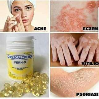 THE MIRACLE PILL (Vitamin D3) Immune System Booster ANTI Acne, Anti Cancer, Pcos , Infertility, Bone And Skin Problems(proven And Tested)
