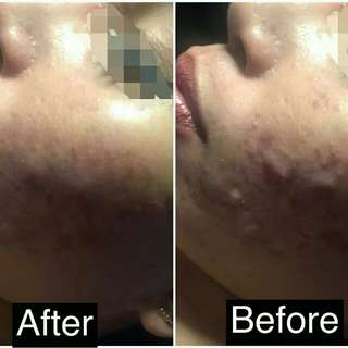 Ance treatment before and after treat
