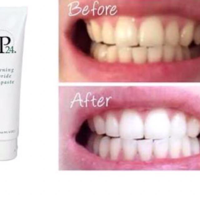 Toothpaste whitening kit
