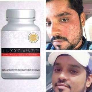 Luxxe white glutathione, slimming food supplements