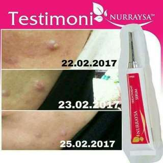 Treatment Serum Nurraysa