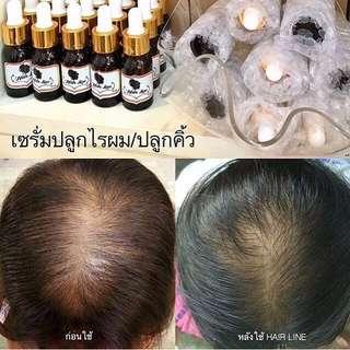Hairline serum