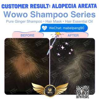 Wowo ginger shampoo series