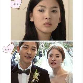 Facial (Korean facial style)