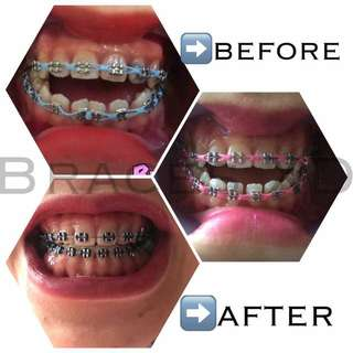 Braces for Him/her