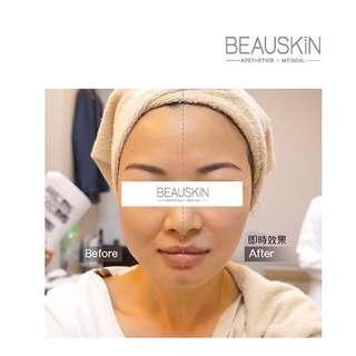 [3折出讓] 即時見效 BEAUSKIN COLLAGEN XP 超頻緊緻提拉療程 V臉