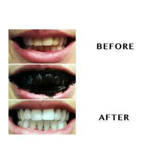 (Ready Stock) 100% Natural Teeth Whitening