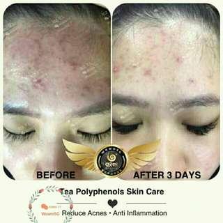 Wowo Tea Polyphenol skincare series