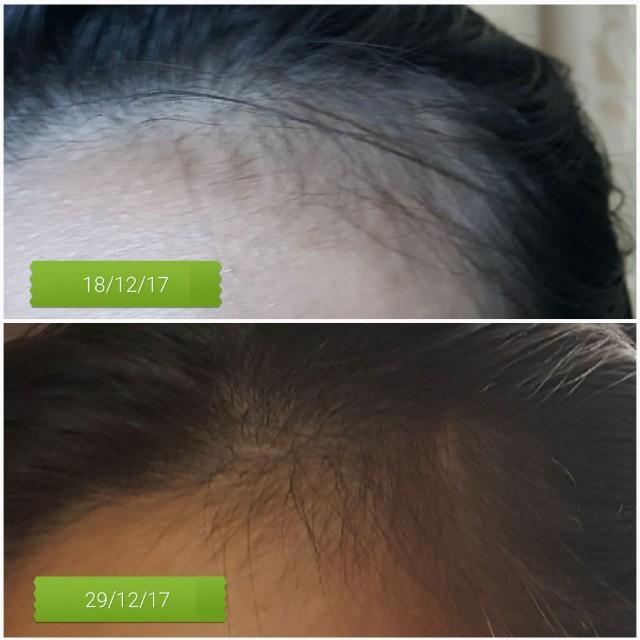 Coffee hair treatment oil