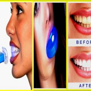 Teeth Whitening - Laser LED Light (FOR RETAIL - 250)