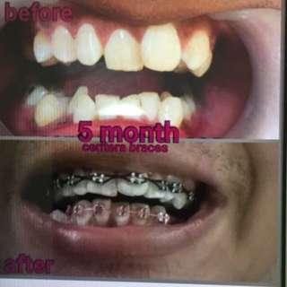 real braces