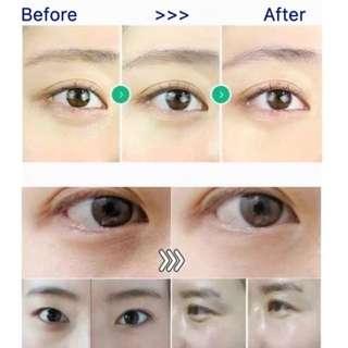 🤩韓國cellinkos臍帶血眼膜🤩