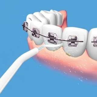 Power Floss Wash Teeth Floss Water Gun