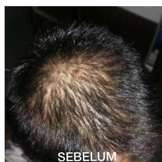 Hair Growth set