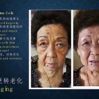 Reverse age cells/reduce wrinkles- Apple stem cell cleanser