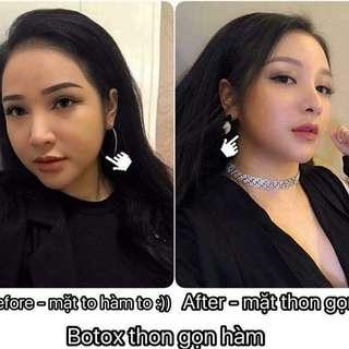 Filler Botox