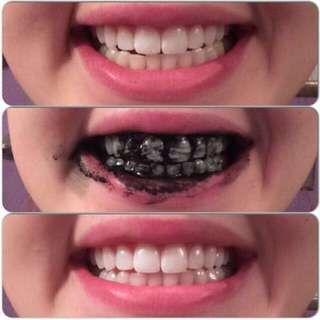 Activated Charcoal  (20g)