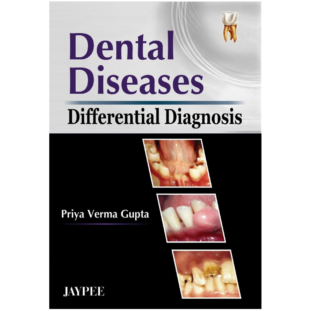 Dentistrynerds items for sale on carousell e book differential diagnosis of dental diseases by gupta fandeluxe Images