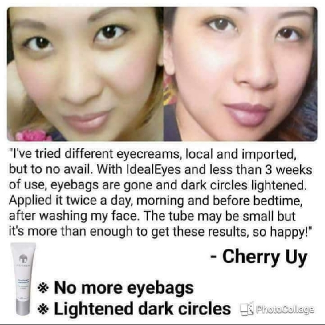 Under Eye Mask Treatment For Bags
