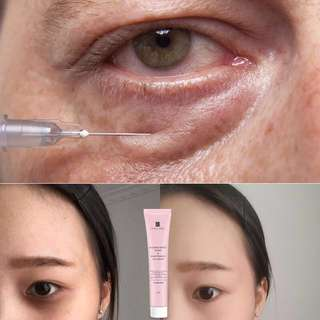 Dark Circle  Eye Bag Cream