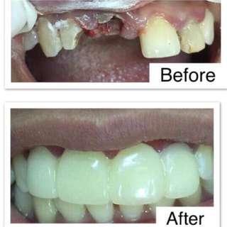 Dental Fixed Bridges and Braces