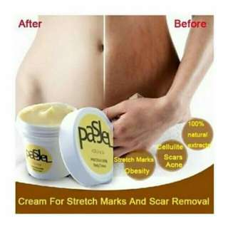 Cream for stretch marks & scar removal