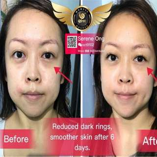 Wowo collagen peptide eye cream with built in massager