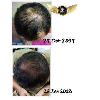 FOR HAIR LOSS/BALDING/DANDRUFF/OILY/ITCHY SCALP