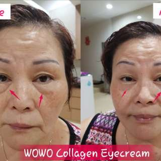 Wowo Collagen Peptide Eye Cream
