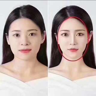 Aesthetic Beauty (micro-cosmestic surgery)/微整