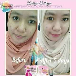 Belleza Whitening collagen