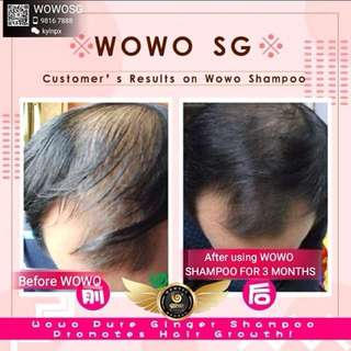 WOWO GINGER SHAMPOO SERIES (dandruff/oily scalps/itchy scalps/balding/hair regrowth)