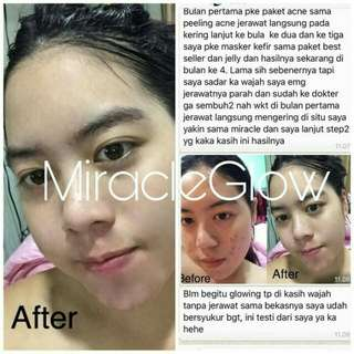 Miracle glow acne