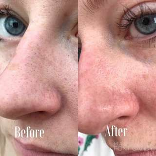 Polishing Peel Skin REFINISHER & Epoch Glacial Marine Mud